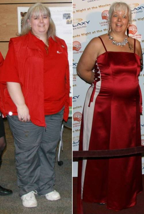 comparison photo